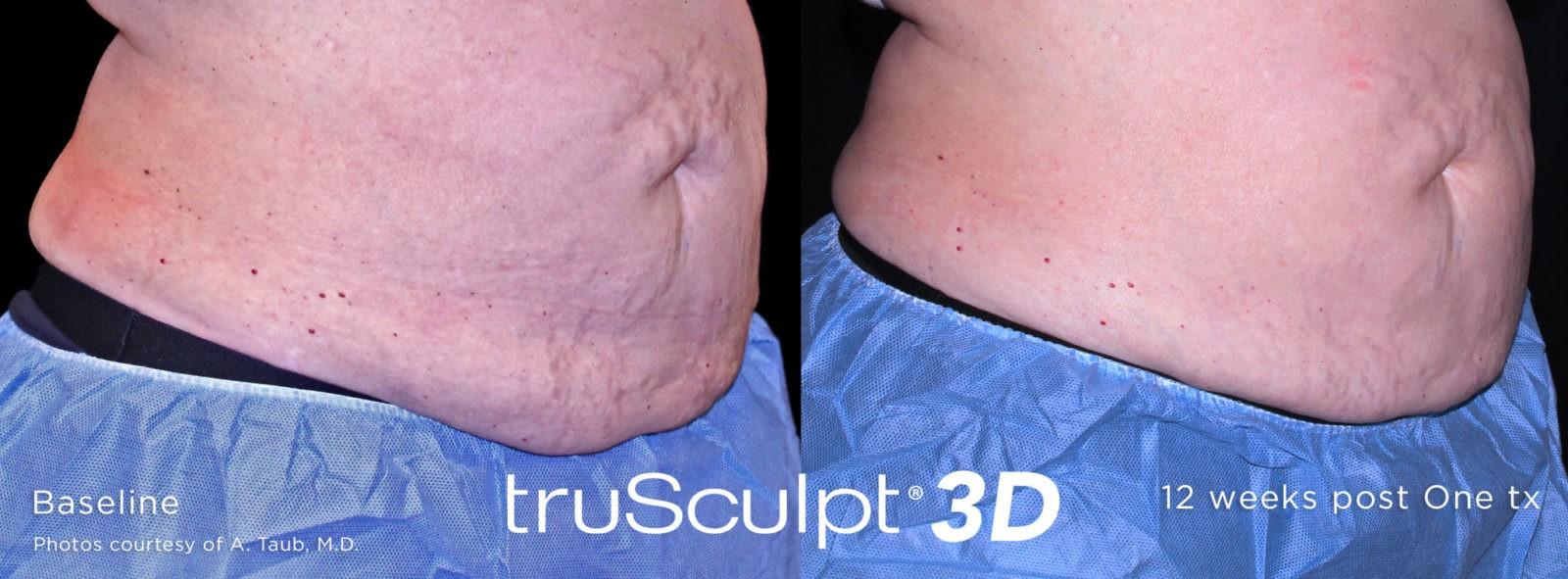 TruSculp® 3D: uomini in forma