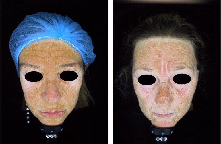 Fotoinvecchiamento Radical Night Repair di ZO Skin Health - Dott.ssa Boscaini